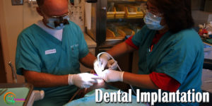 Amazing Dental Implant Can Grow New Teeth In Your Mouth