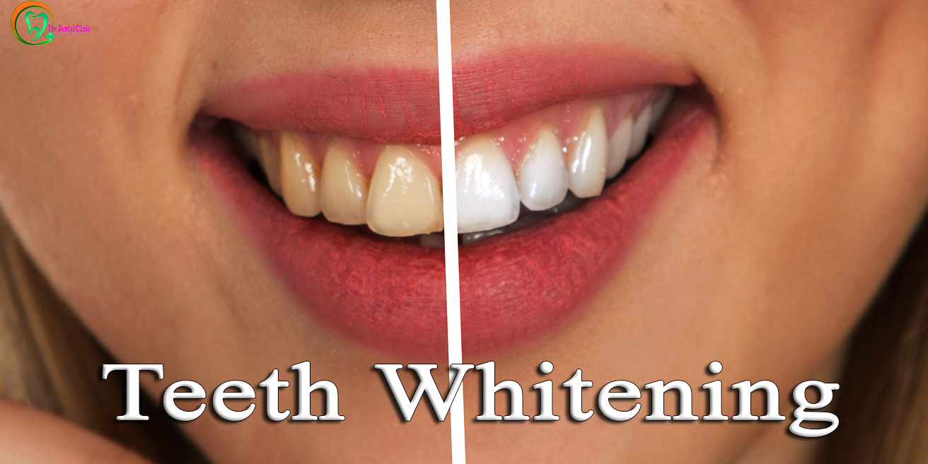 Teeth Whitening – Keep Your Smile Shining Ever!